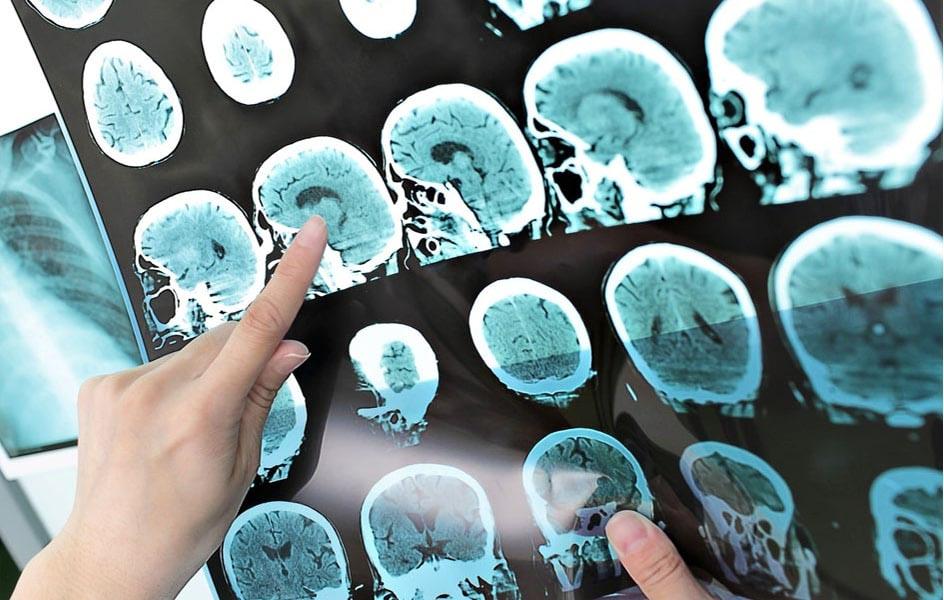 agyvérzés tünetei